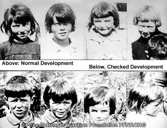 Name:  wide and narrow palates_gaelic_children.jpg Views: 2461 Size:  50.3 KB
